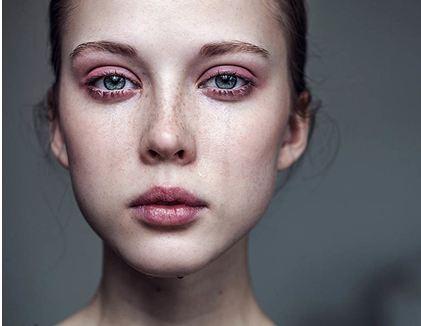 Как убрать заплаканные глаза