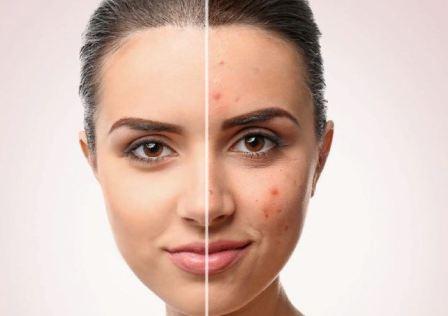 Протирать лицо перекисью водорода от прыщей