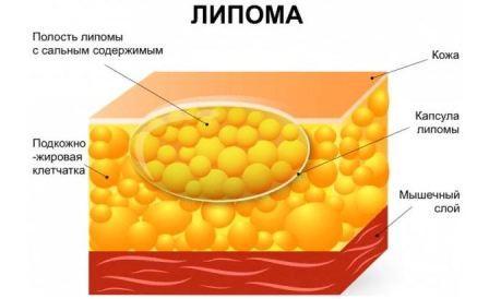 Липома: лечение