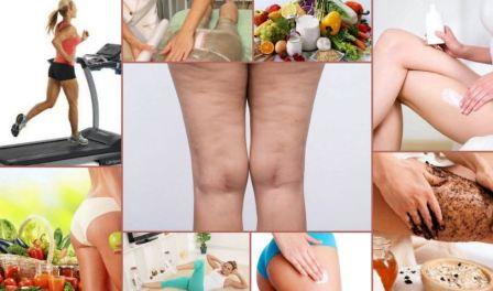 Целлюлит на ногах: как избавиться от апельсиновой корки