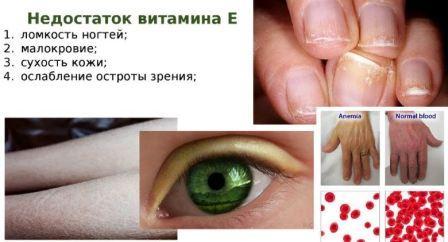 Какие витамины восстановят кожу, волосы и ногти